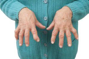 artroza articulațiilor genunchiului motivele tratament